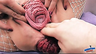 Anal,Extreme,Fisting,Gaping